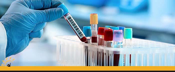 Blood Lab Testing Clinic in Unionville & Ellington, CT
